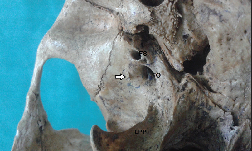 Figure 1: Inferior aspect of skull (right side) showing a small spine (Arrow) extending from the greater wing of sphenoid. LPP- Lateral pterygoid plate, FO- Foramen ovale, FS- Foramen spinosum