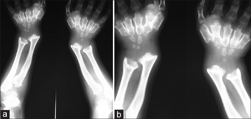 Figure 1: Anteroposterior radiograph of both hands, (a) and wrists (b): Metaphyseal expansion of long bones with planes of both the distal ulnar and radial growth plates seen slanted toward each other, conical (bullet-shaped) proximal bases of 2–5 metacarpals with normal construction of metacarpal shafts and tapering of the proximal phalanges. The ossified carpal bones are small and reduced in number for the patient's age