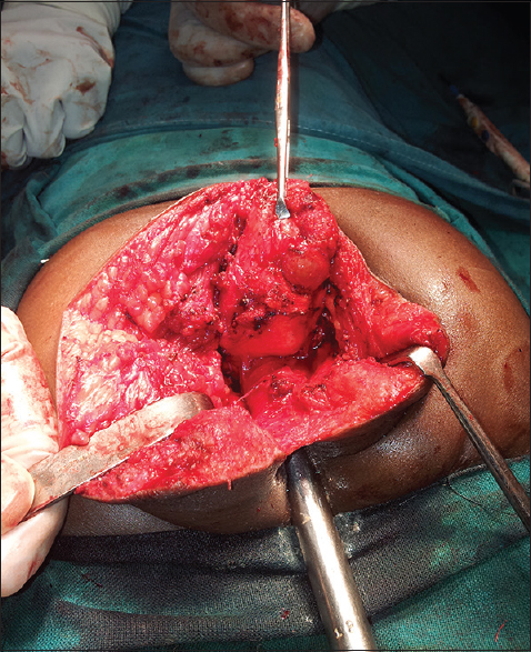 Figure 3: Intra-operative photograph showing near complete separation of the tumor. Also seen is Hegar's dilator within the rectum