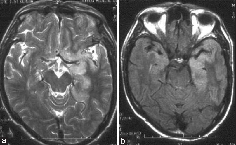 Figure 1: Cranial magnetic resonance imaging showing hyperintensities in the bilateral temporal lobes, (a) T2-weighted and (b) T1-flair weighted images