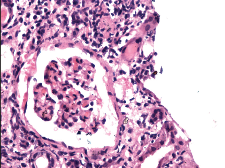 Figure 1: Type I lupus nephritis showing normal cellularity of glomerulus, periglomerular fibrosis and surrounded by dense infiltrate of mononuclear cells and few neutrophils (H and E, ×500)