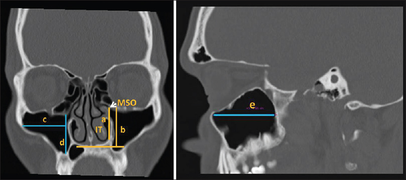 Anatomy of maxillary sinus and its ostium: A radiological study ...