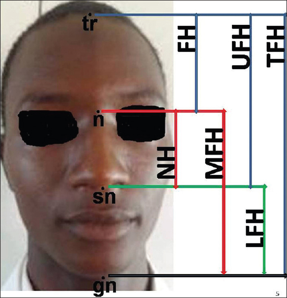Figure 1: Biometric measurements of the Face. tr = trichion, n = nasion, sn = subnasale, and gn = gnathion. TFH = total face height, FH = forehead height, UFH = upper face height, NH = nose height, MFH = morphological face height, and LFH = lower face height