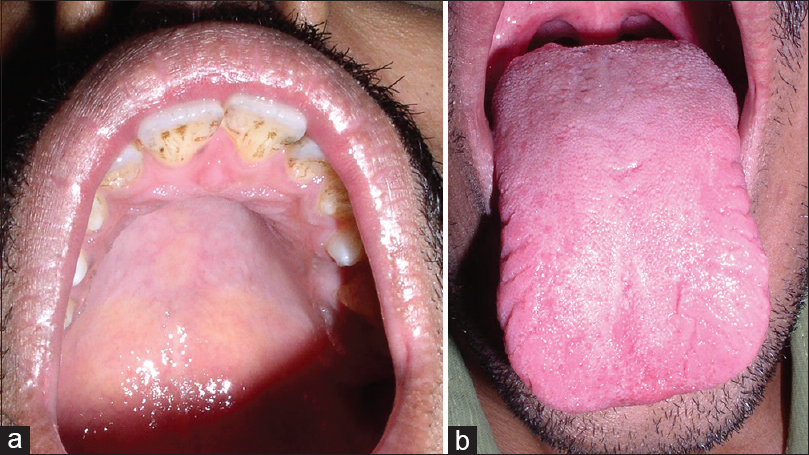 Figure 5: (a) Clinical image showing high arched palate. (b) Clinical image showing multiple fissures on lateral borders of the tongue