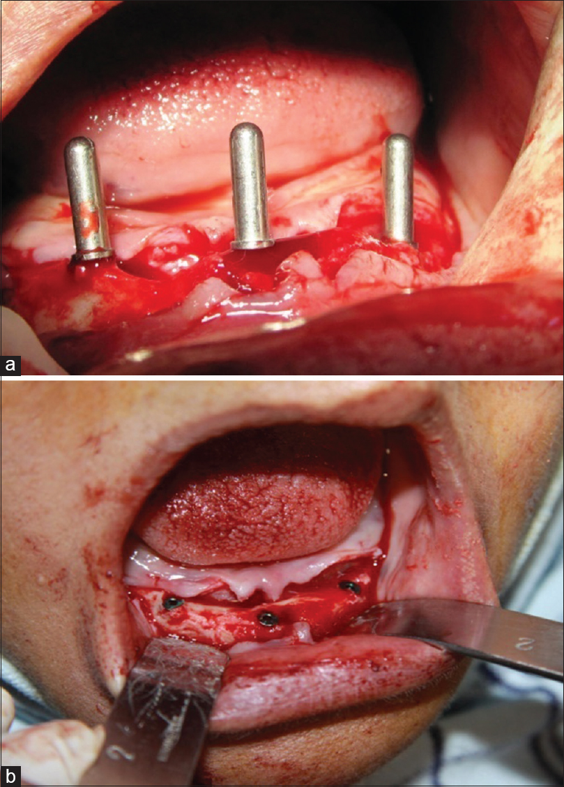 Figure 3: (a) Surgical positioning of implant site. (b) Implants covered with cover screw