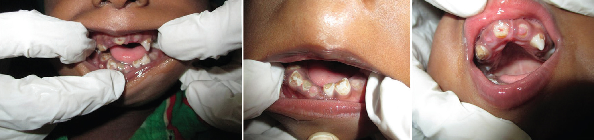 Figure 2: Photograph revealing the intraoral features of Case 1