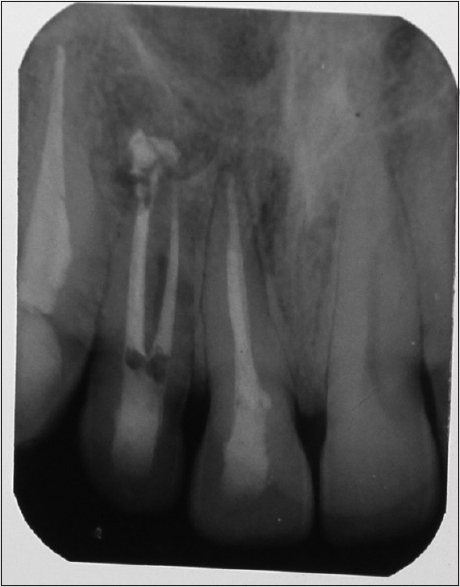 Figure 4: Four-year recall radiograph 22