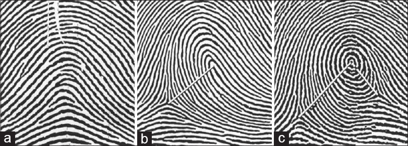 Figure 3: Magnified views of three basic patterns (a) No line of count in arch pattern. Ridge count score is zero. (b) White line joining centre of pattern to point of tri-radius. The number of ridges cutting the line is 13. (c) Ridge count on the left of the pattern is 17, ridge count on the right is 8