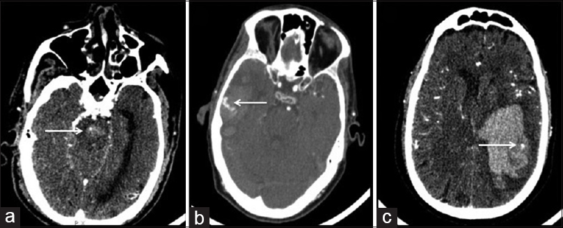 Figure 1: Computerized tomography angiography showing (a) spot sign in brain stem, (b) serpiginous spot sign, and (c) spot sign in lobar hemorrhage, all highlighted by arrows